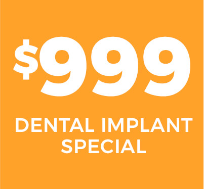 $999 Dental Implant Special
